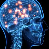 Parkinson's Movement Maximise Guide